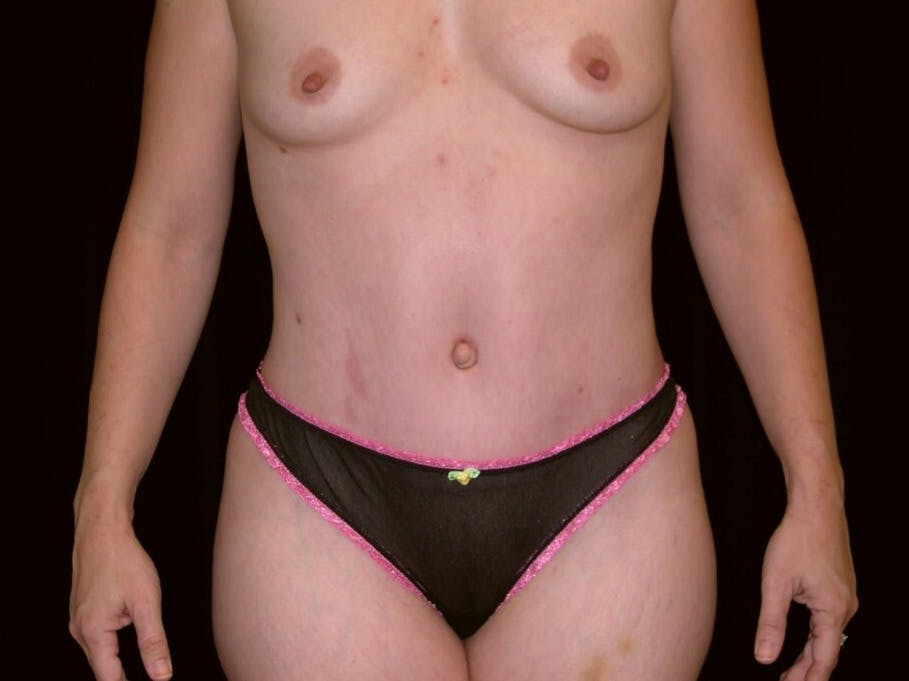 Tummy Tuck Gallery - Patient 39244145 - Image 2