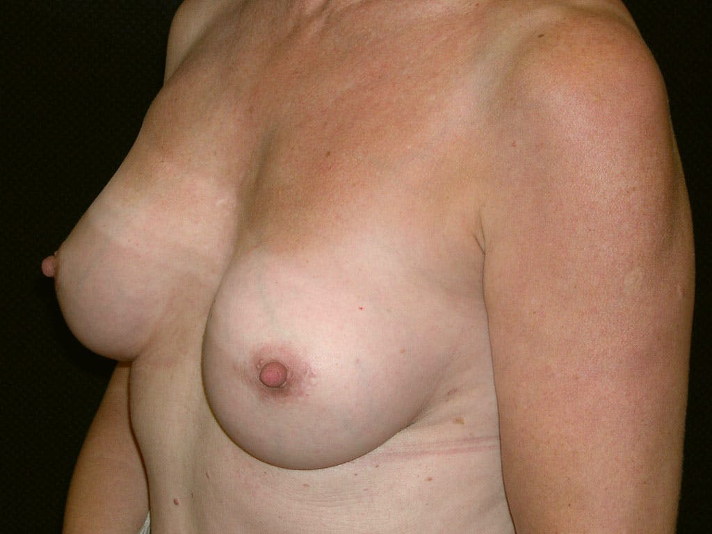Revision Breast Surgery Gallery - Patient 39244141 - Image 8