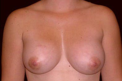 Breast Augmentation Gallery - Patient 39244139 - Image 2