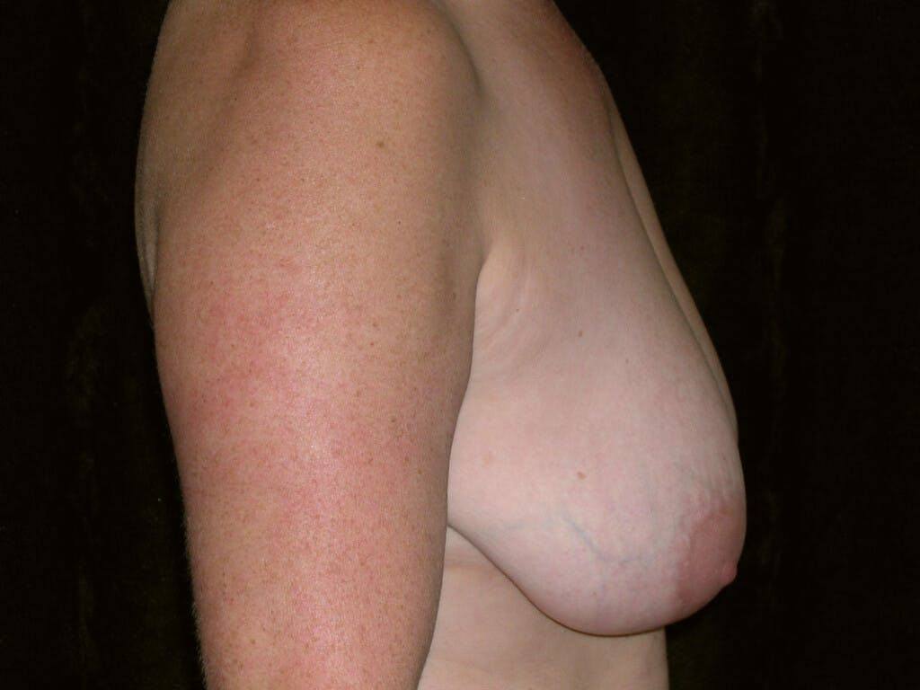 Breast Reduction T Incision Gallery - Patient 39244140 - Image 9