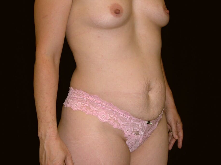 Tummy Tuck Gallery - Patient 39244145 - Image 3