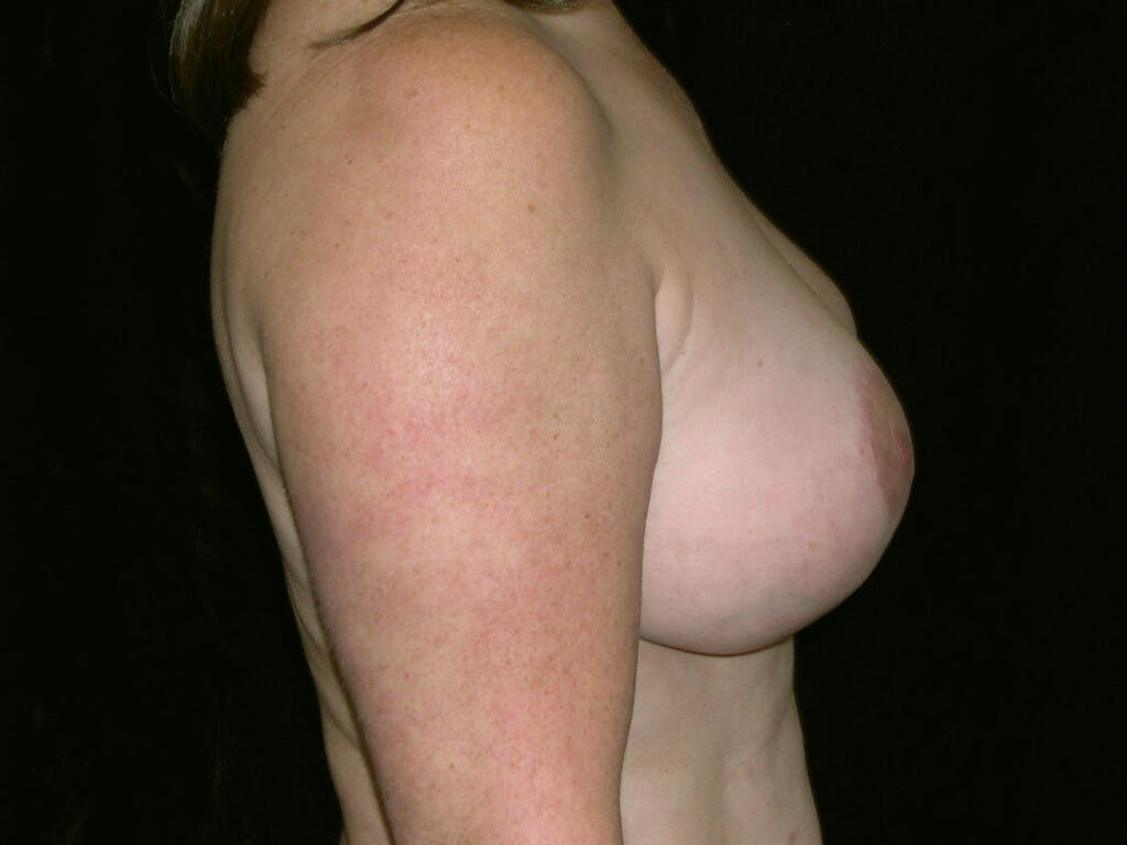 Breast Reduction T Incision Gallery - Patient 39244140 - Image 10