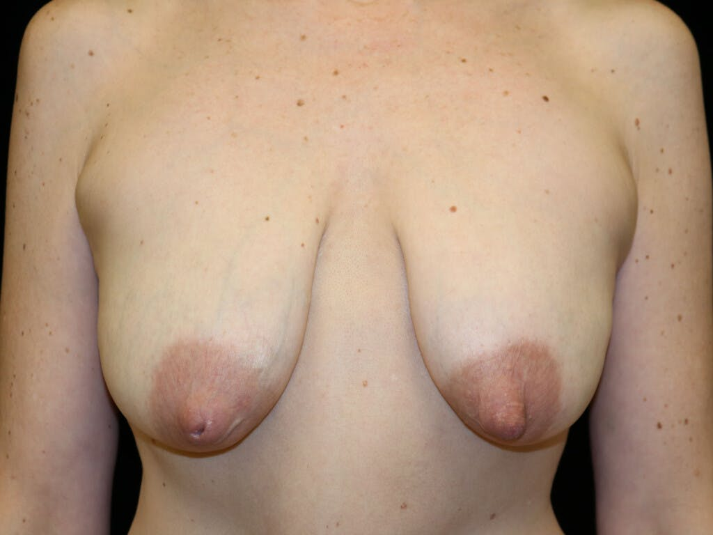 Vertical and Inverted T Breast Lift Gallery - Patient 39244165 - Image 1
