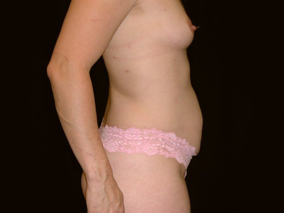 Tummy Tuck Gallery - Patient 39244145 - Image 5
