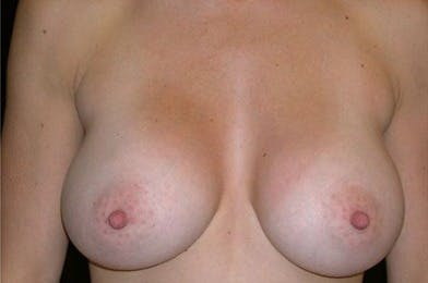 Breast Augmentation Gallery - Patient 39244142 - Image 2