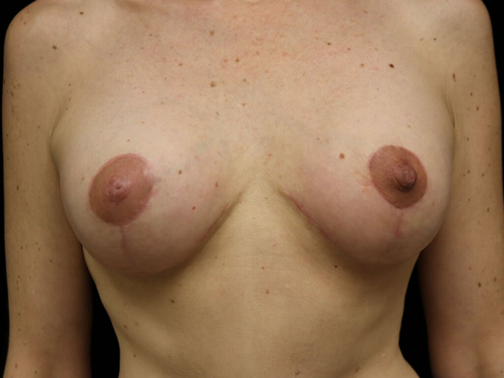 Vertical and Inverted T Breast Lift Gallery - Patient 39244165 - Image 2