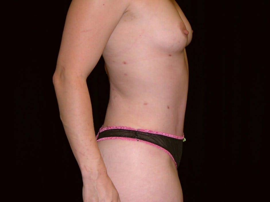 Tummy Tuck Gallery - Patient 39244145 - Image 6