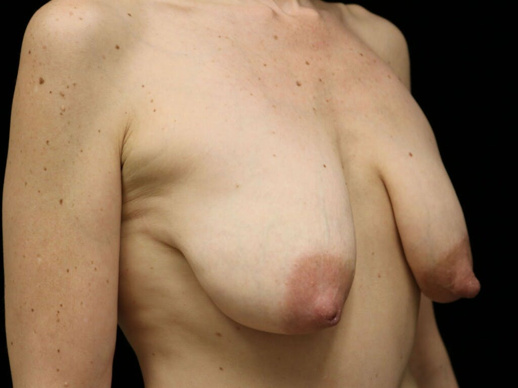 Vertical and Inverted T Breast Lift Gallery - Patient 39244165 - Image 3