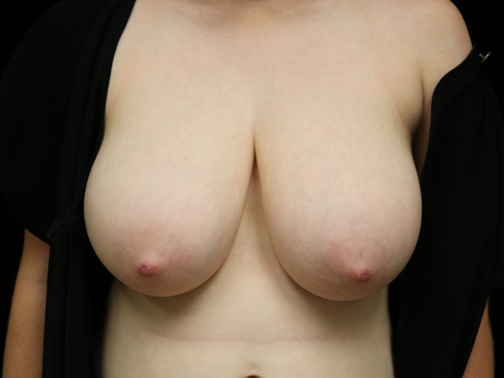 Breast Reduction T Incision Gallery - Patient 39244147 - Image 1