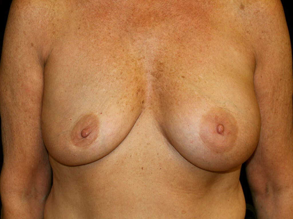 Revision Breast Surgery Gallery - Patient 39244169 - Image 1