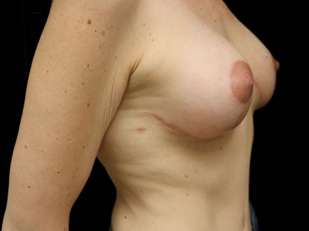 Vertical and Inverted T Breast Lift Gallery - Patient 39244165 - Image 4