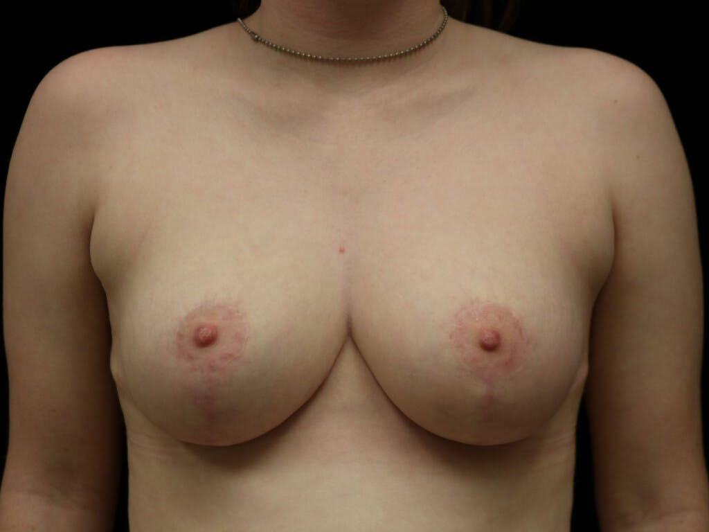 Breast Reduction T Incision Gallery - Patient 39244147 - Image 2