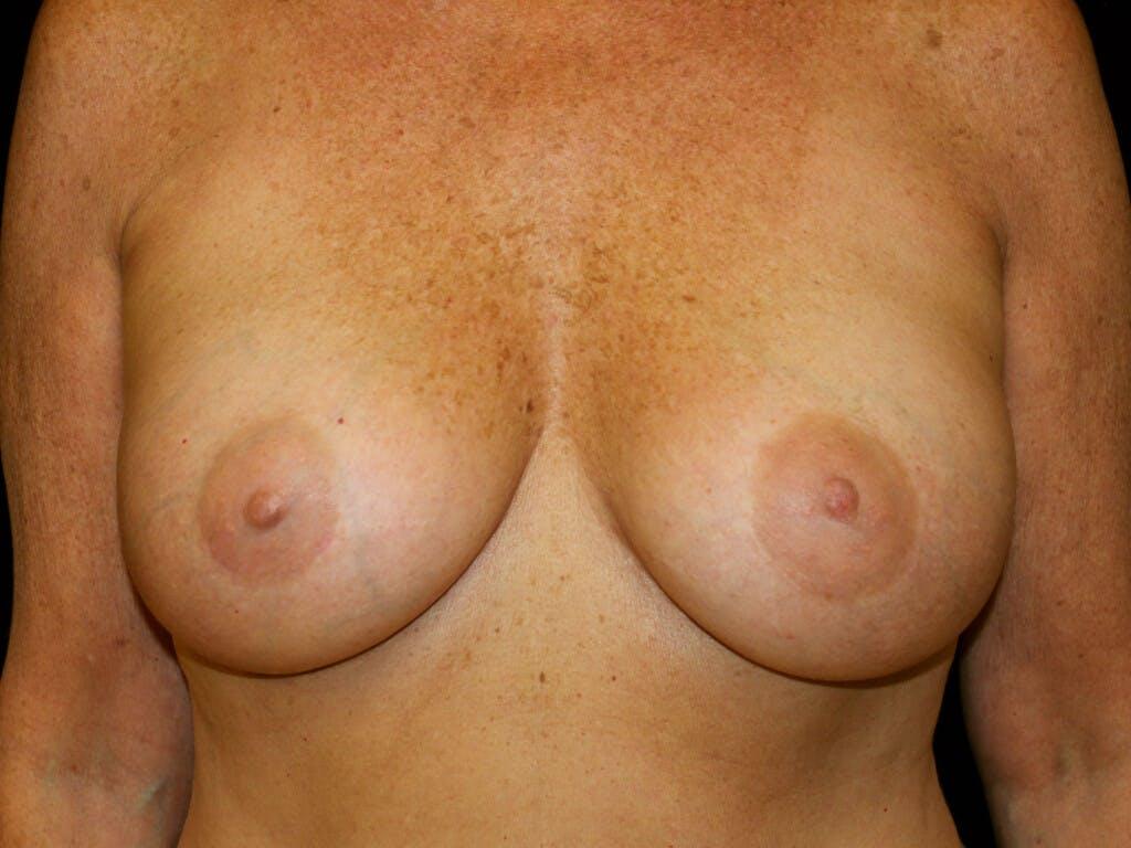 Revision Breast Surgery Gallery - Patient 39244169 - Image 2