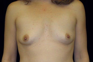 Breast Augmentation Gallery - Patient 39244144 - Image 1