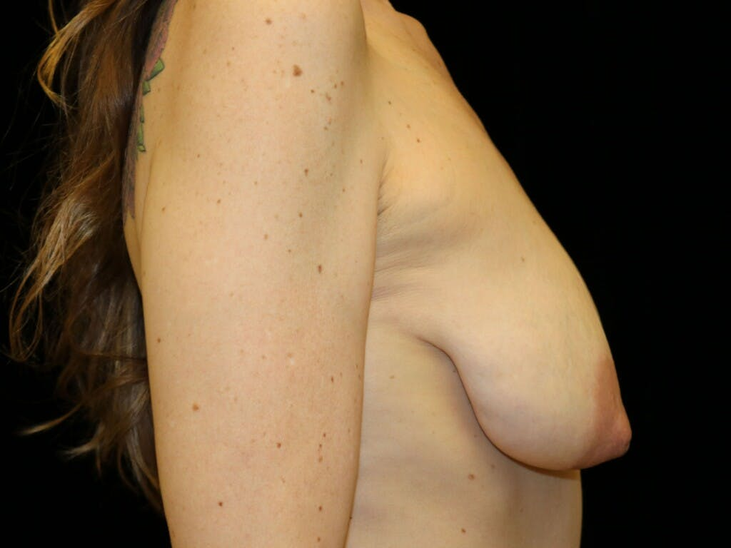 Vertical and Inverted T Breast Lift Gallery - Patient 39244165 - Image 5