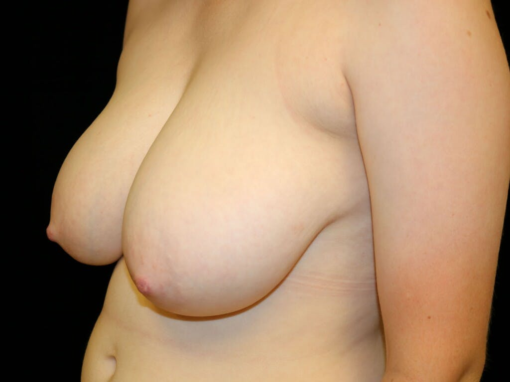 Breast Reduction T Incision Gallery - Patient 39244147 - Image 3
