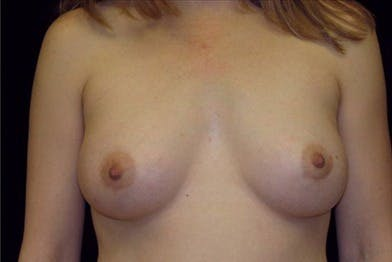 Breast Augmentation Gallery - Patient 39244144 - Image 2