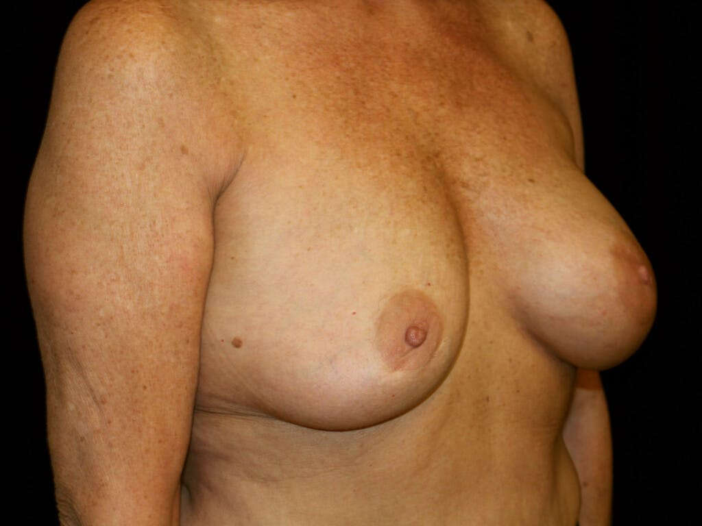 Revision Breast Surgery Gallery - Patient 39244169 - Image 3