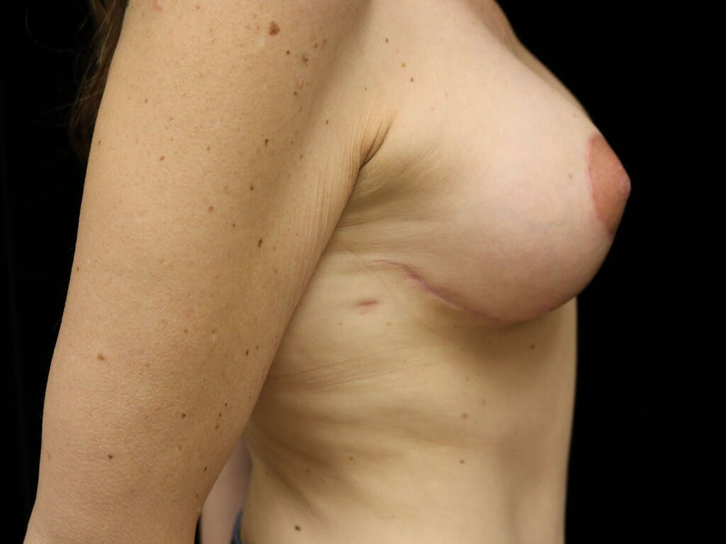 Vertical and Inverted T Breast Lift Gallery - Patient 39244165 - Image 6