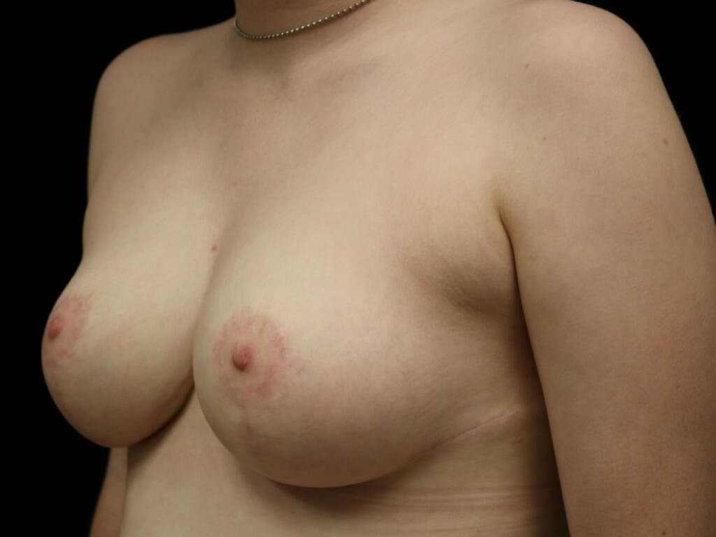 Breast Reduction T Incision Gallery - Patient 39244147 - Image 4