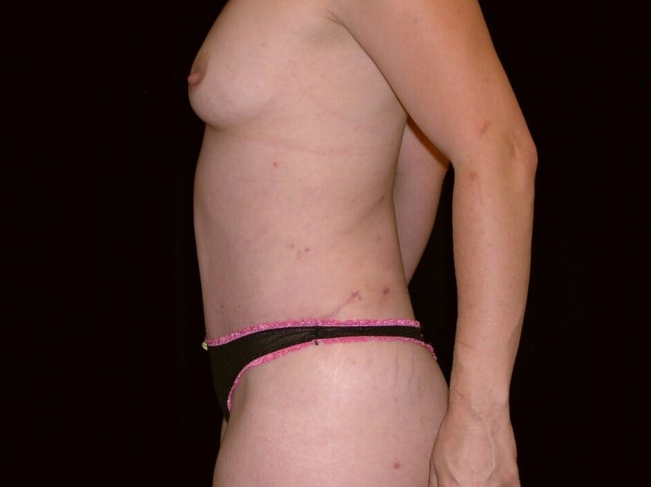 Tummy Tuck Gallery - Patient 39244145 - Image 10