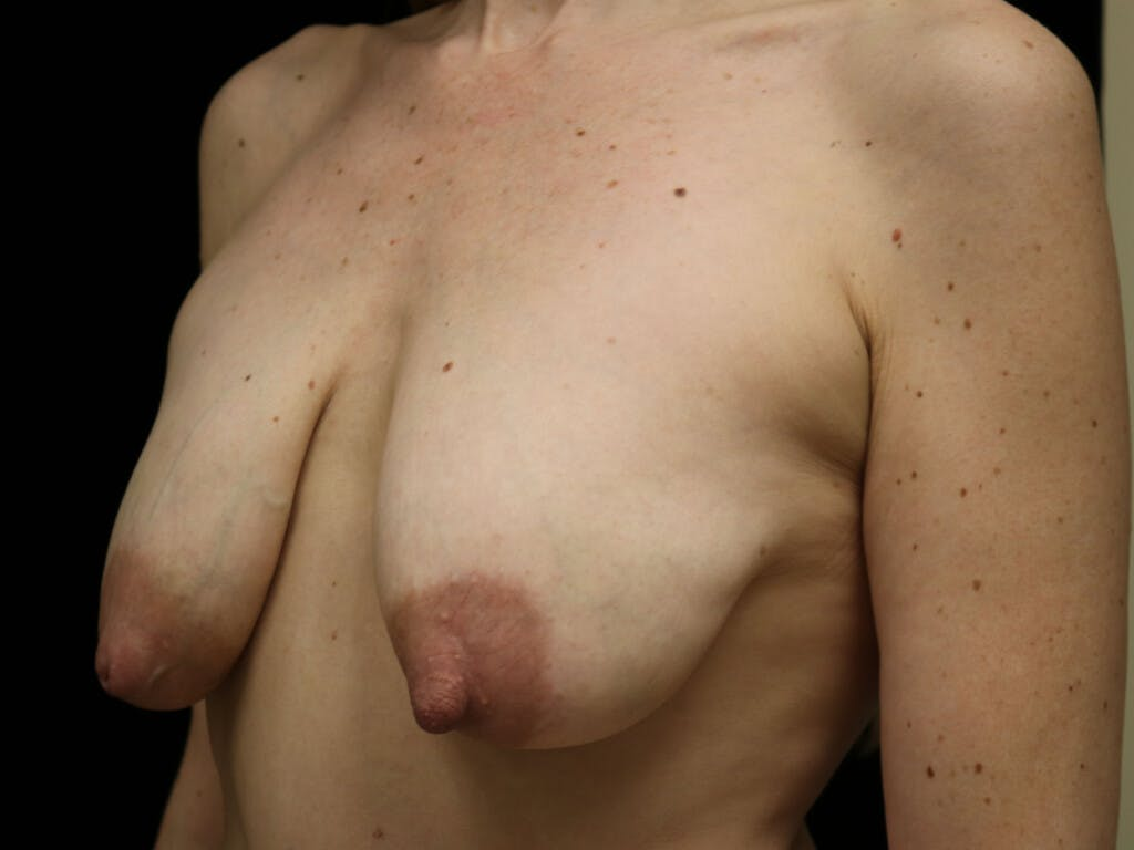Vertical and Inverted T Breast Lift Gallery - Patient 39244165 - Image 7
