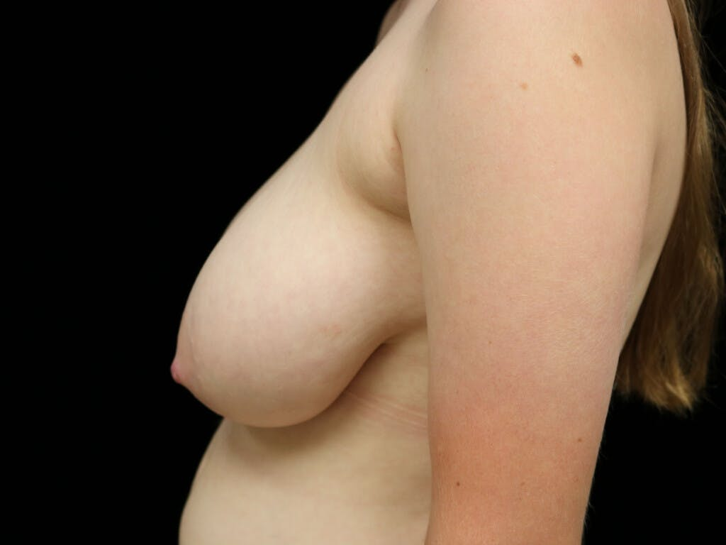 Breast Reduction T Incision Gallery - Patient 39244147 - Image 5