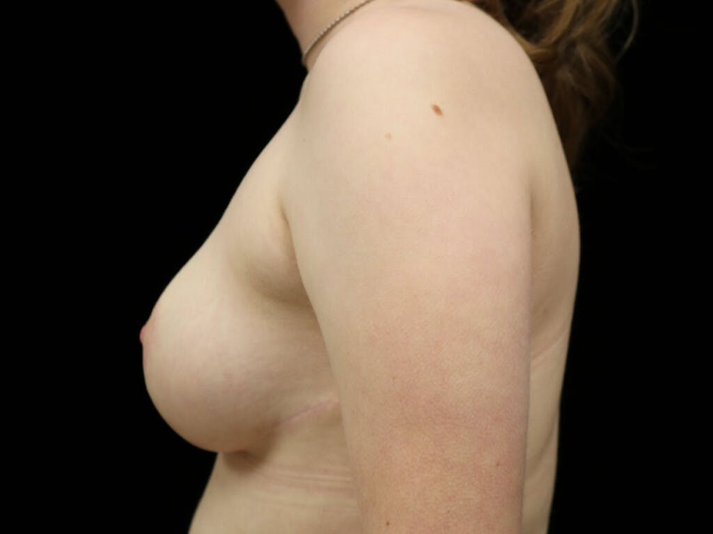 Breast Reduction T Incision Gallery - Patient 39244147 - Image 6
