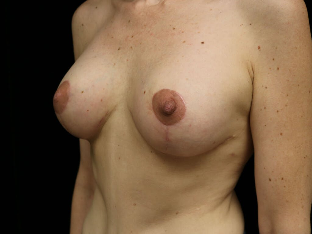Vertical and Inverted T Breast Lift Gallery - Patient 39244165 - Image 8