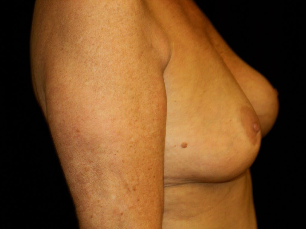 Revision Breast Surgery Gallery - Patient 39244169 - Image 5
