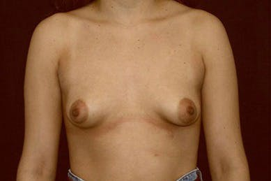 Breast Augmentation Gallery - Patient 39244164 - Image 1