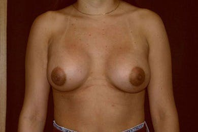 Breast Augmentation Gallery - Patient 39244164 - Image 2