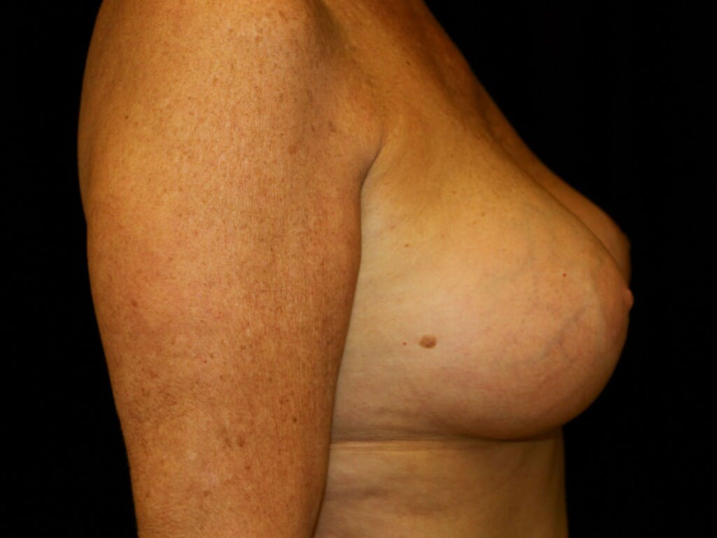 Revision Breast Surgery Gallery - Patient 39244169 - Image 6