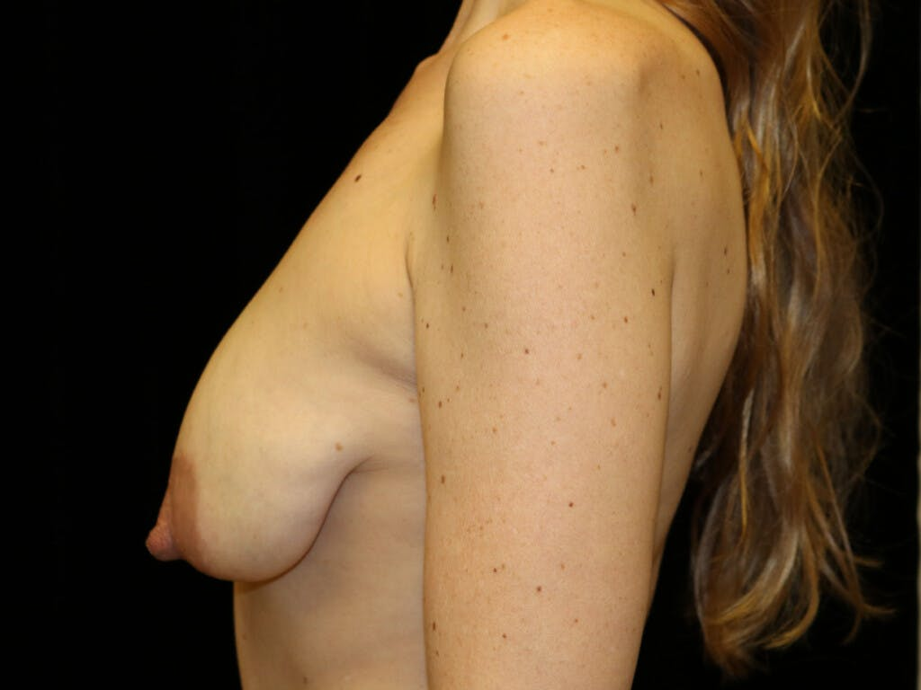 Vertical and Inverted T Breast Lift Gallery - Patient 39244165 - Image 9