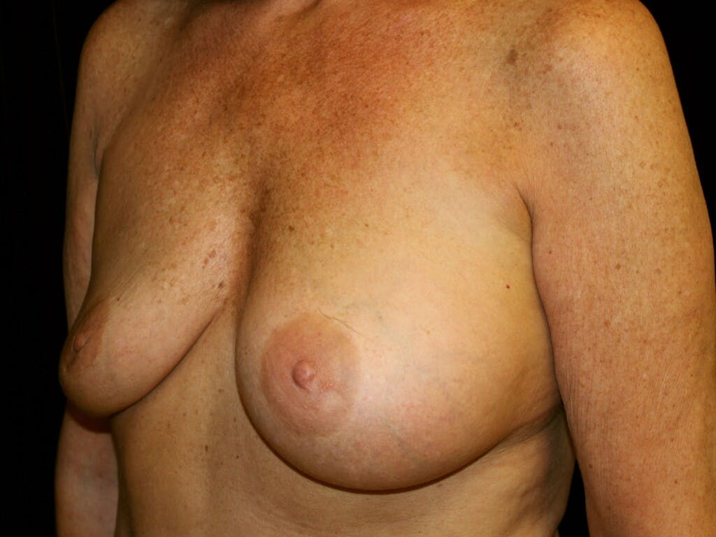 Revision Breast Surgery Gallery - Patient 39244169 - Image 7