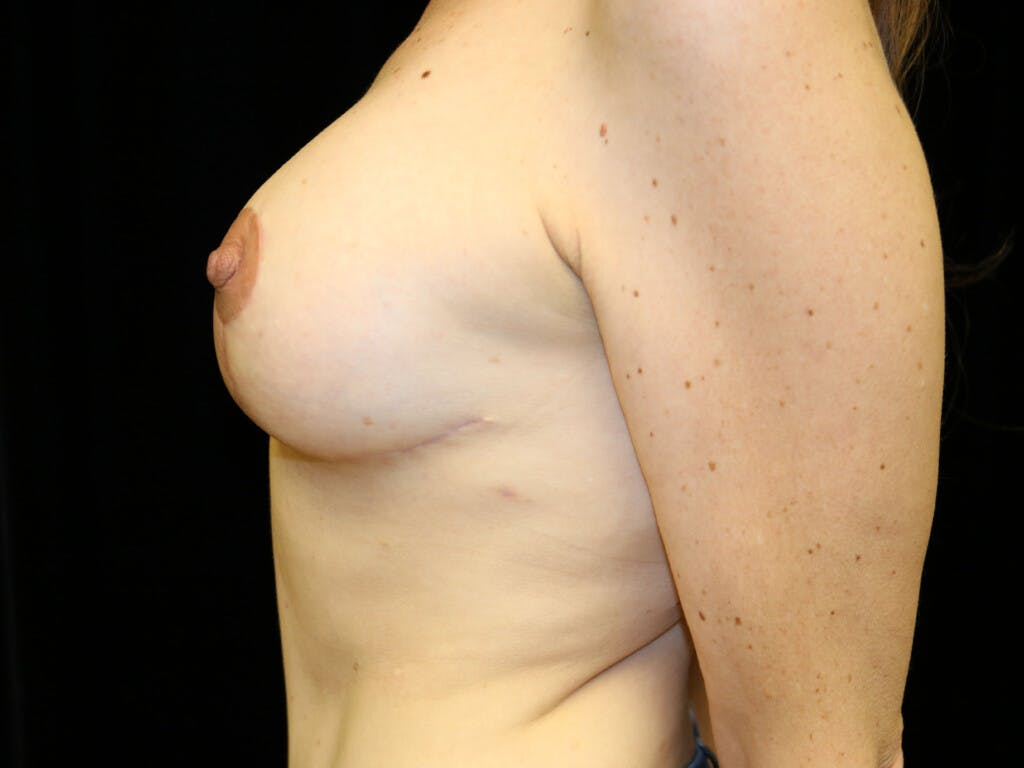 Vertical and Inverted T Breast Lift Gallery - Patient 39244165 - Image 10