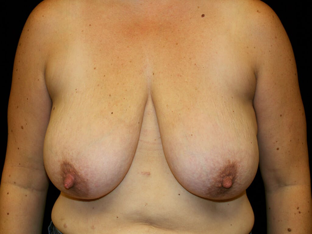 Breast Reduction T Incision Gallery - Patient 39244172 - Image 1