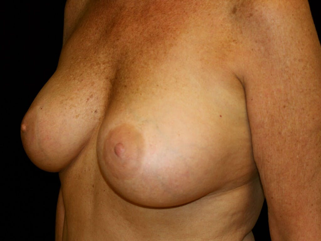 Revision Breast Surgery Gallery - Patient 39244169 - Image 8