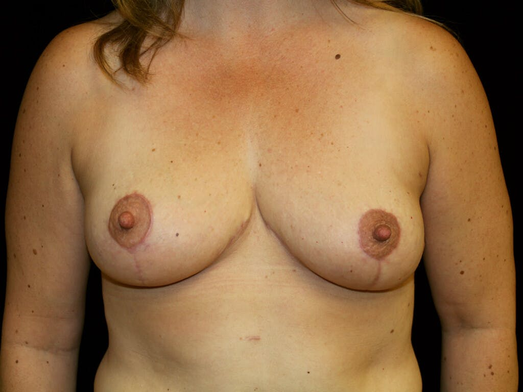 Breast Reduction T Incision Gallery - Patient 39244172 - Image 2