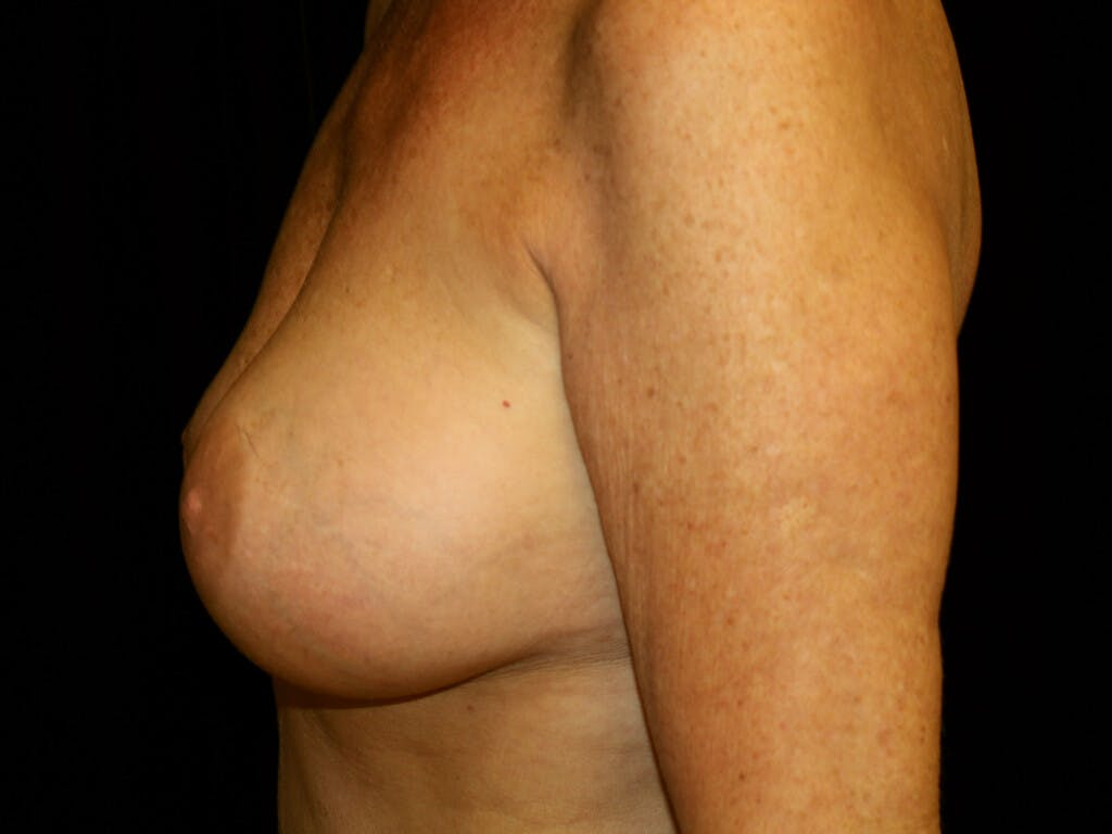 Revision Breast Surgery Gallery - Patient 39244169 - Image 9
