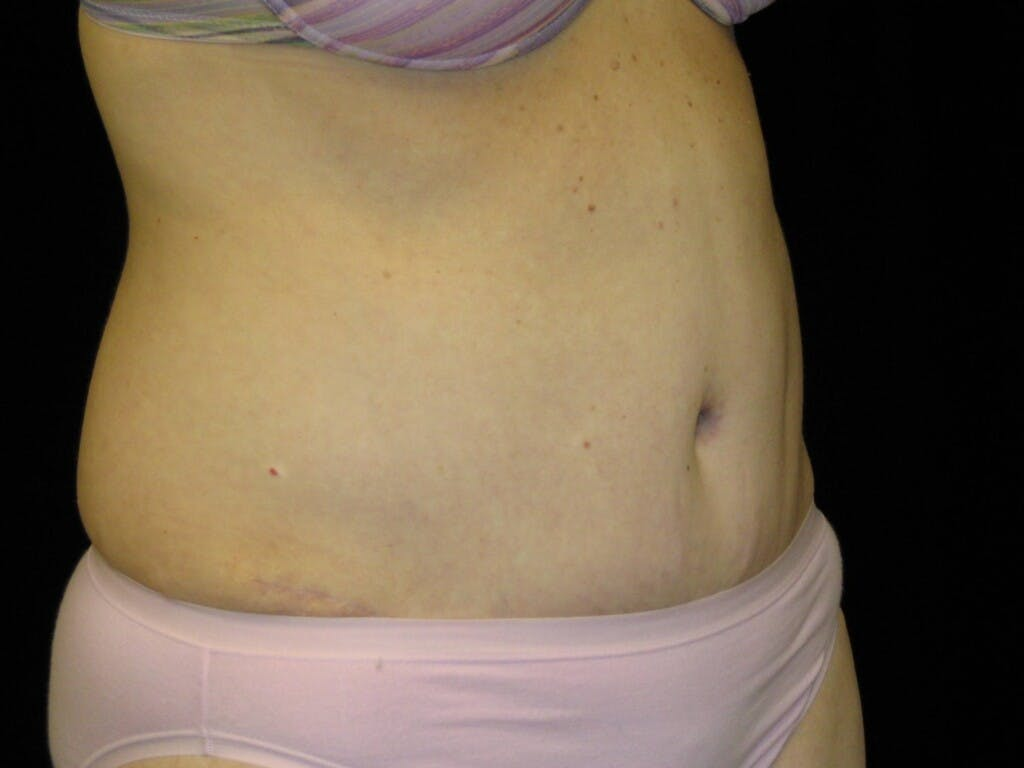 Tummy Tuck Gallery - Patient 39244170 - Image 4