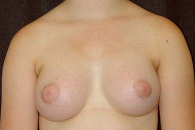 Breast Augmentation Gallery - Patient 39244167 - Image 2