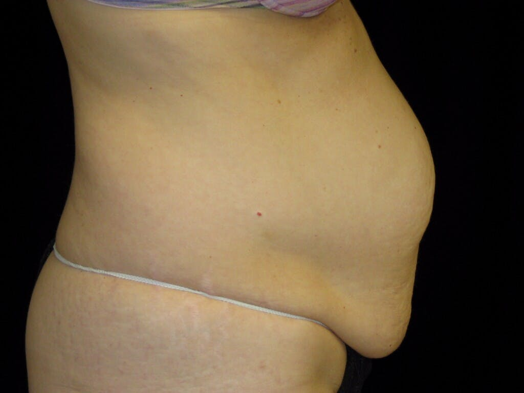 Tummy Tuck Gallery - Patient 39244170 - Image 5
