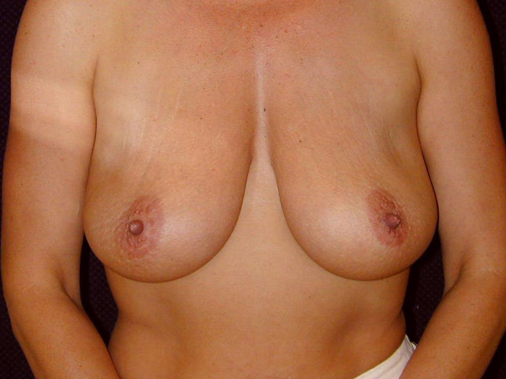 Vertical and Inverted T Breast Lift Gallery - Patient 39244176 - Image 1
