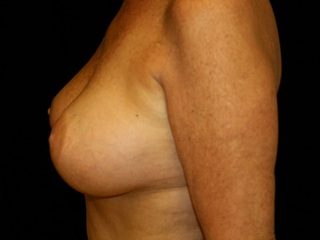 Revision Breast Surgery Gallery - Patient 39244169 - Image 10