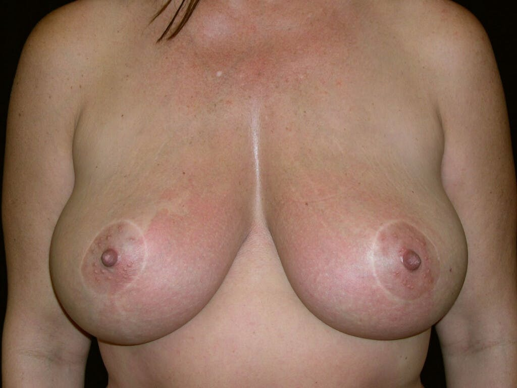 Vertical and Inverted T Breast Lift Gallery - Patient 39244176 - Image 2