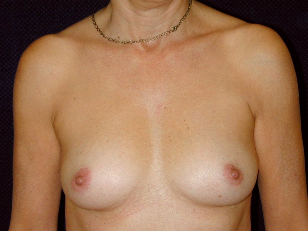 Breast Augmentation Gallery - Patient 39244174 - Image 1