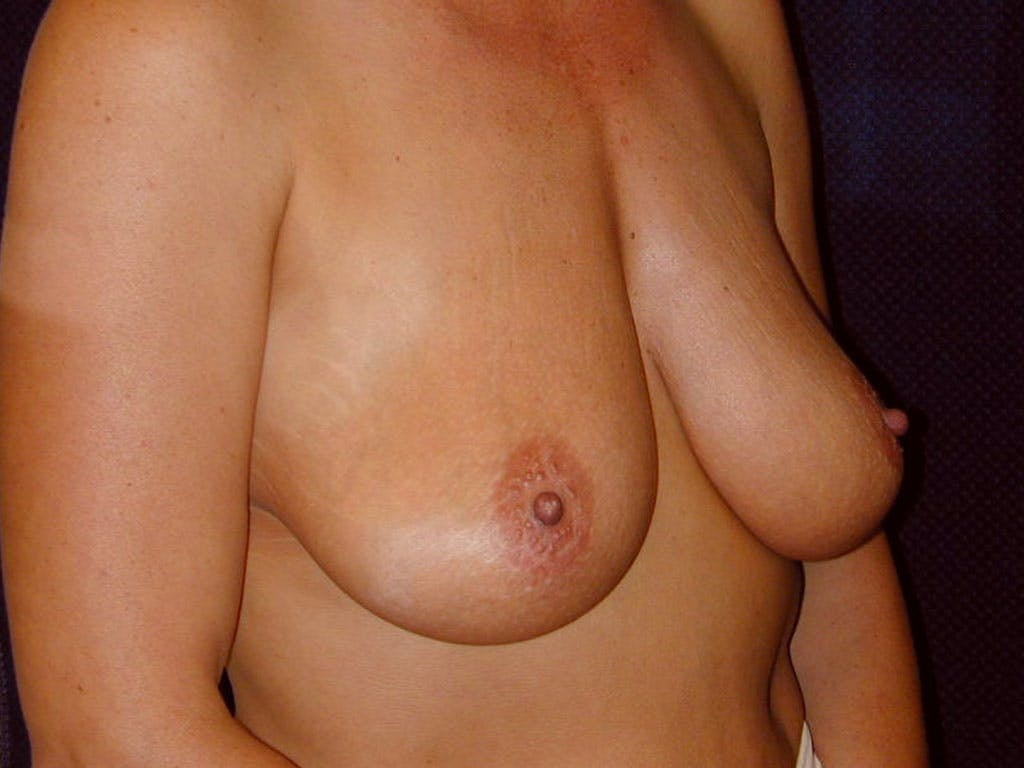 Vertical and Inverted T Breast Lift Gallery - Patient 39244176 - Image 3