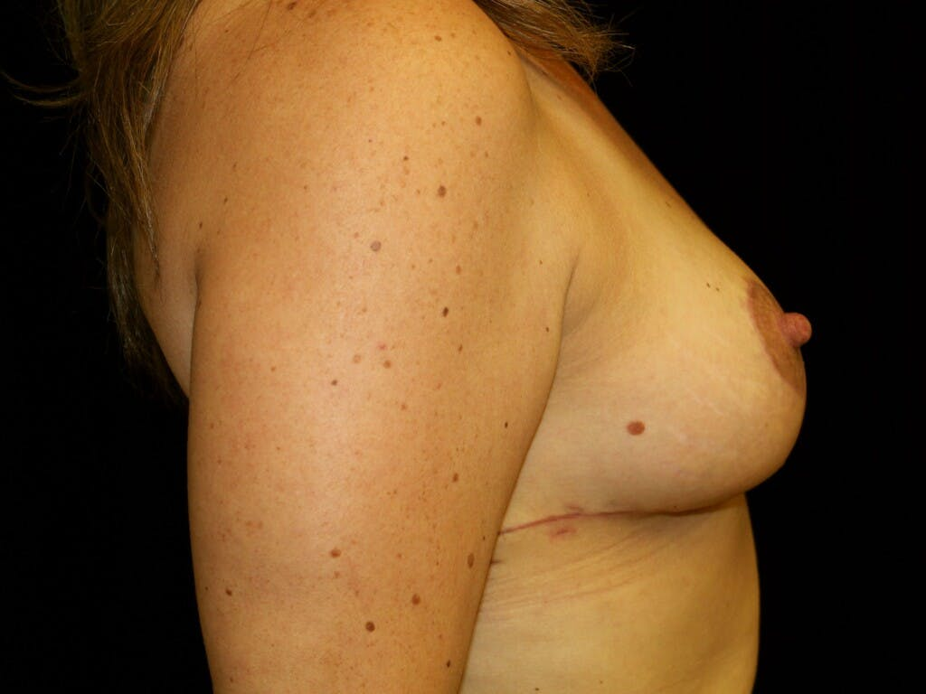 Breast Reduction T Incision Gallery - Patient 39244172 - Image 6