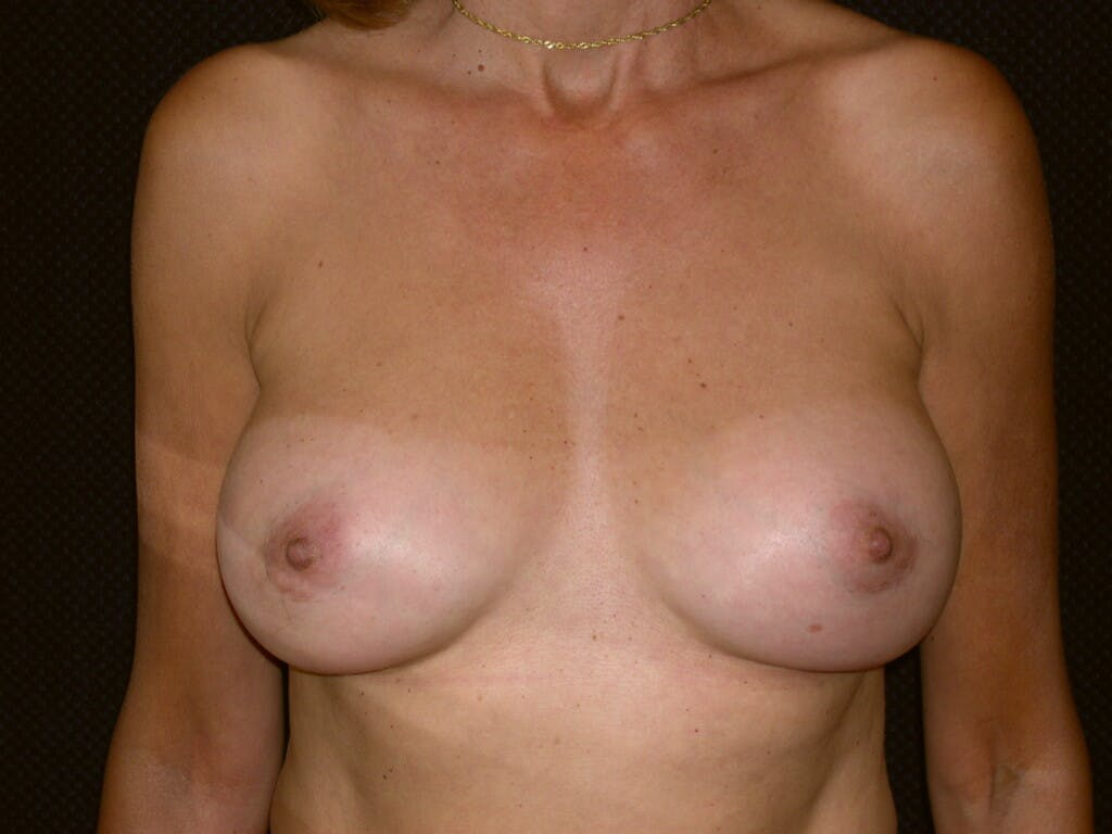 Breast Augmentation Gallery - Patient 39244174 - Image 2